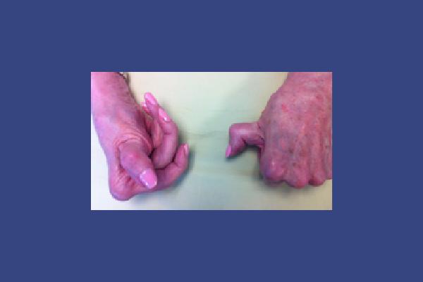 Deformities of Untreated Rheumatoid Arthritis