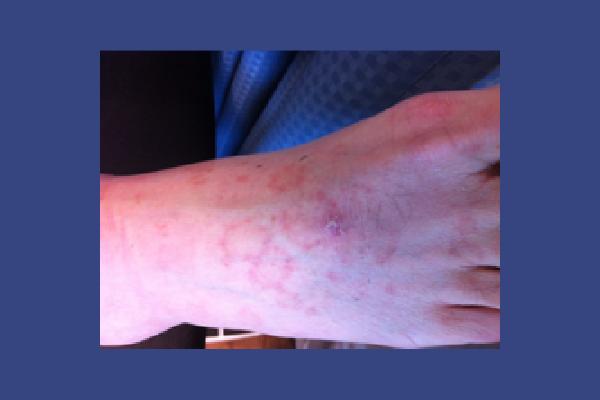Vasculitis Mimic (Pigmented Purpuric Dermatoses)