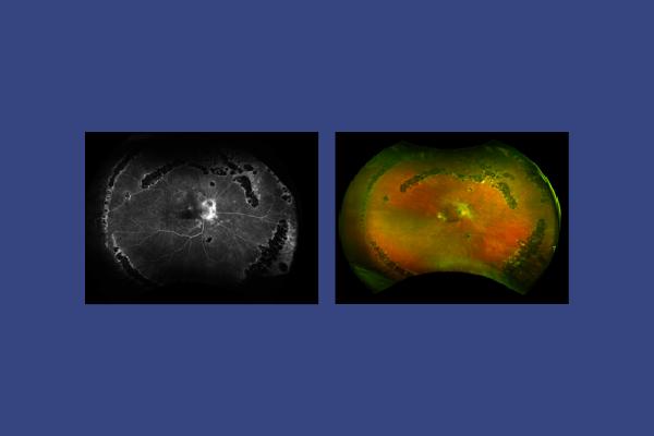Retinal Angiography Depicting Chorioretinitis