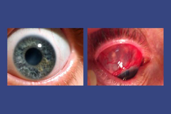Scleromalacia-Perforans