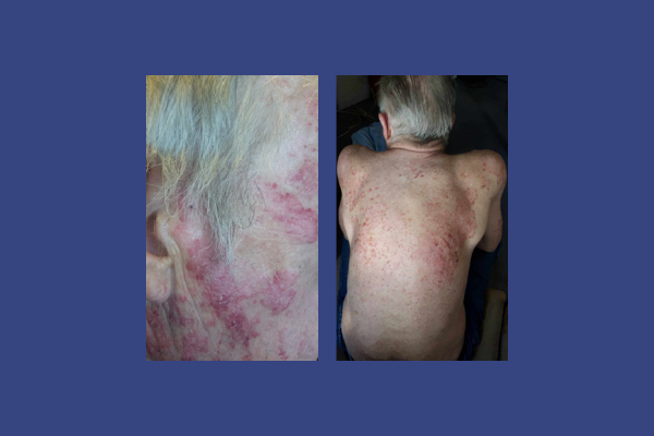Subacute (Psoriasiform) Cutaneous Lupus Erythematosus